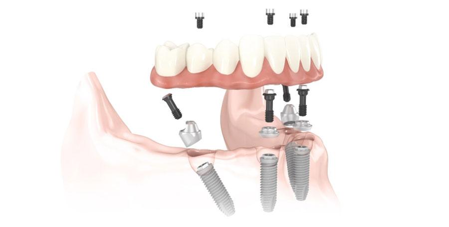 Implantologia | Studio Dentistico a Magenta, Magnago, Milano