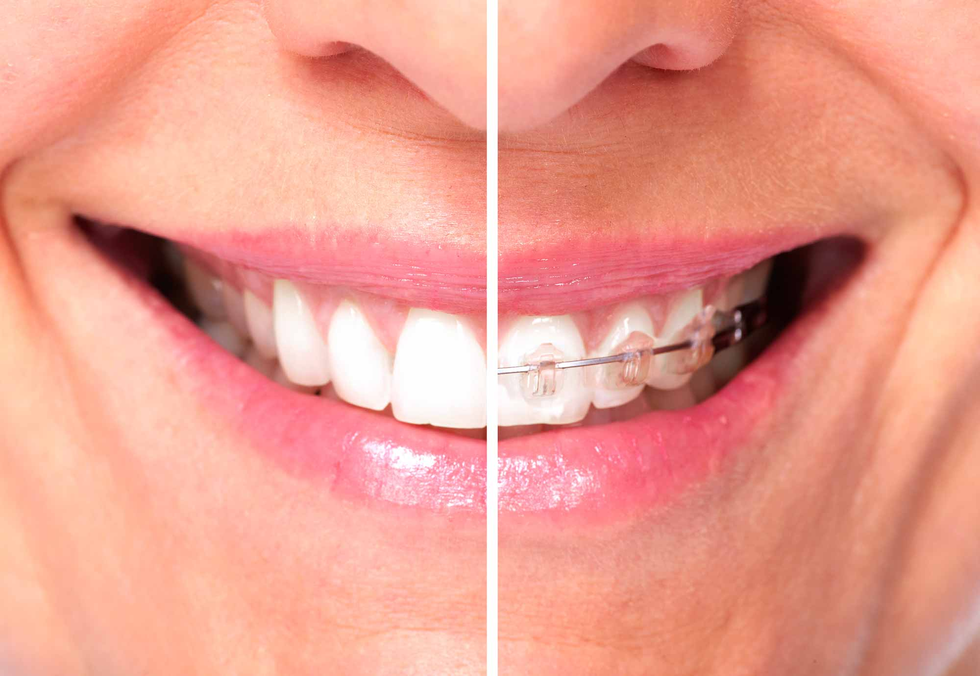 ortodonzia - Pedodonzia - Amadental Studio Dentistico