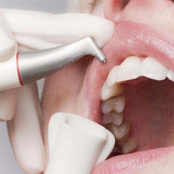Igiene orale con air flow | Dentista a Magnago, Magenta, Milano | Amadental