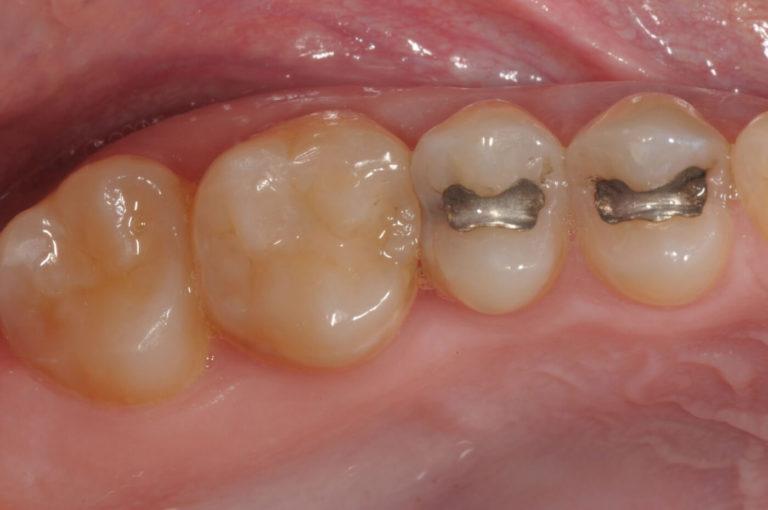 Conservativa 4 | Studio Dentistico a Milano, Magnago, Magenta