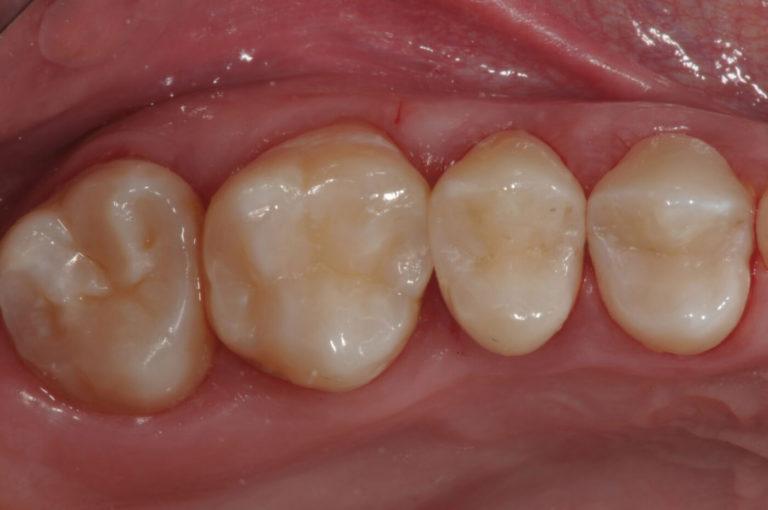 Conservativa 2 | Studio Dentistico a Milano, Magnago, Magenta