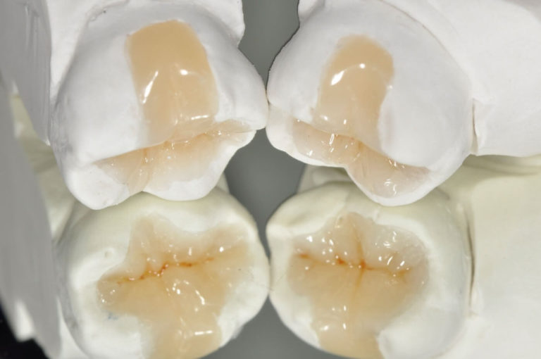 Conservativa | Studio Dentistico a Magenta, Milano, Magnago