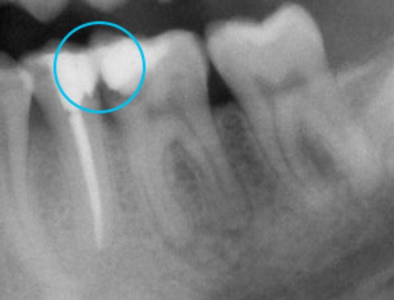 Endodonzia 2 | Studio Dentistico a Milano, Magnago, Magenta