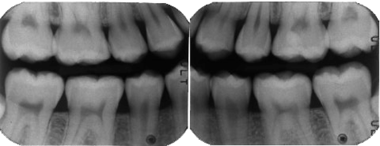 Diagnostica | Studio Dentistico a Magnago, Magenta, Milano