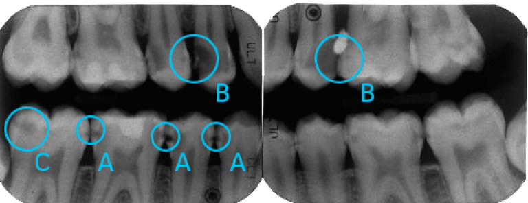 Diagnostica | Studio Dentistico a Milano, Magnago, Magenta