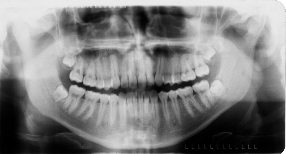Diagnostica 2   Studio Dentistico a Magnago, Magenta, Milano