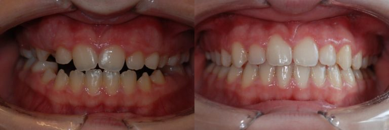 Ortodonzia 4 | Studio Dentistico a Magenta, Magnago, Milano