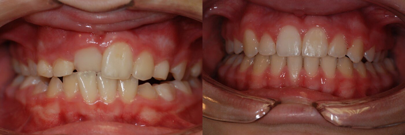 Ortodonzia 2   Studio Dentistico a Magenta, Magnago, Milano