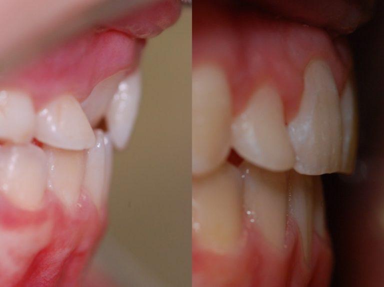 Ortodonzia | Studio Dentistico a Magenta, Magnago, Milano