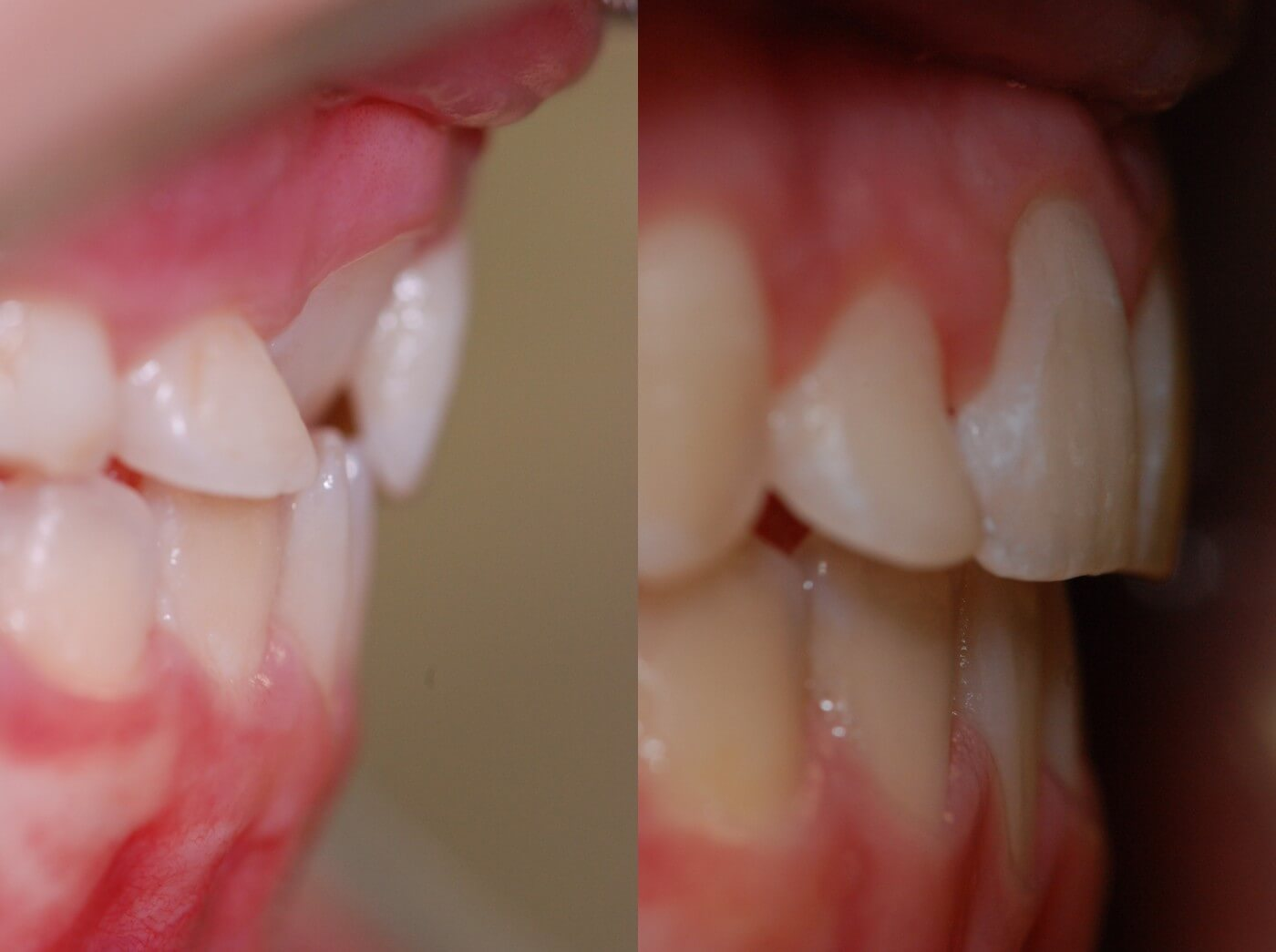 Ortodonzia   Studio Dentistico a Magenta, Magnago, Milano