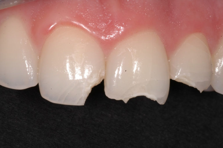 Estetica dentale 2   Studio Dentistico a Milano, Magnago, Magenta
