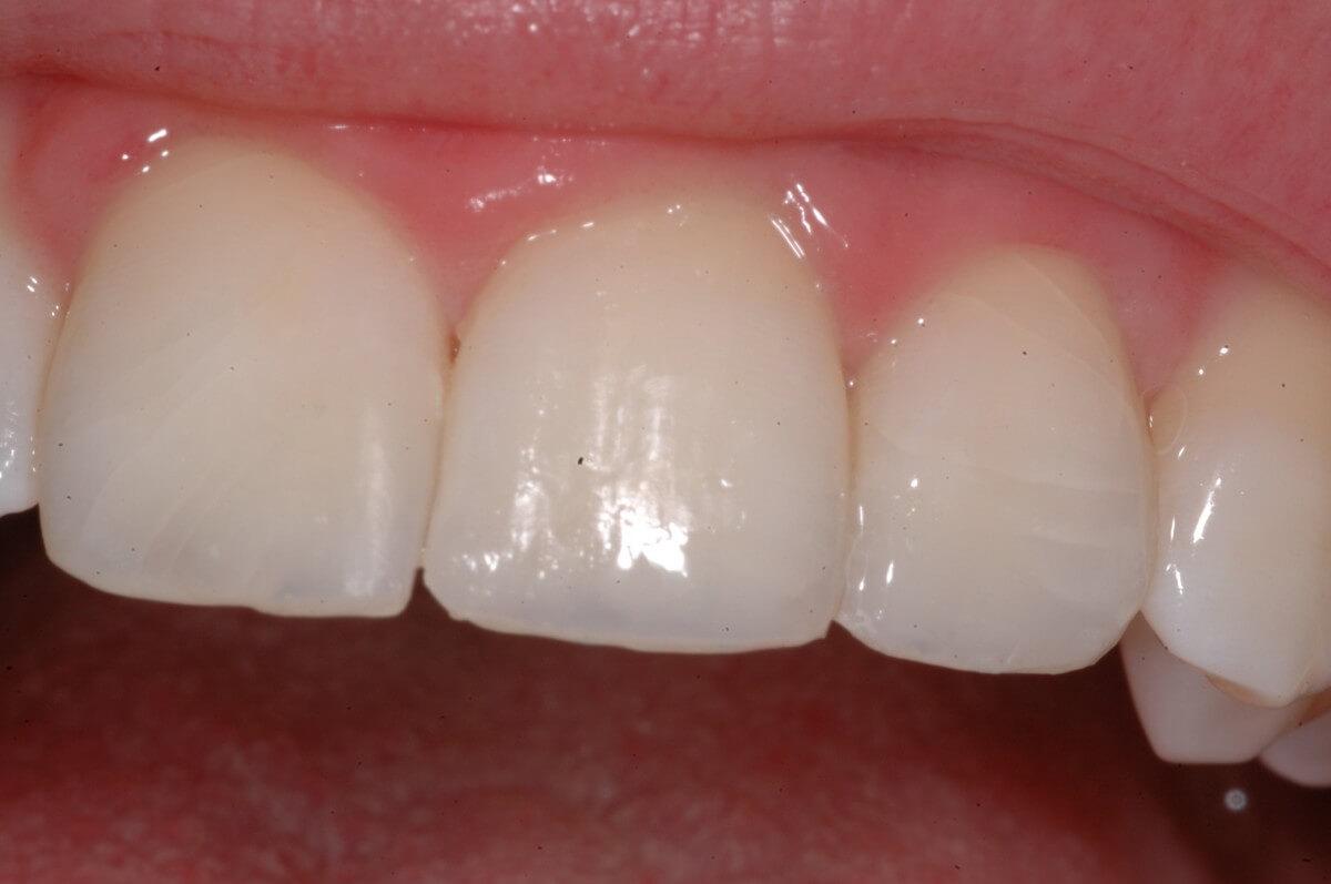 Estetica dentale 2 | Studio Dentistico a Magnago, Milano, Magenta
