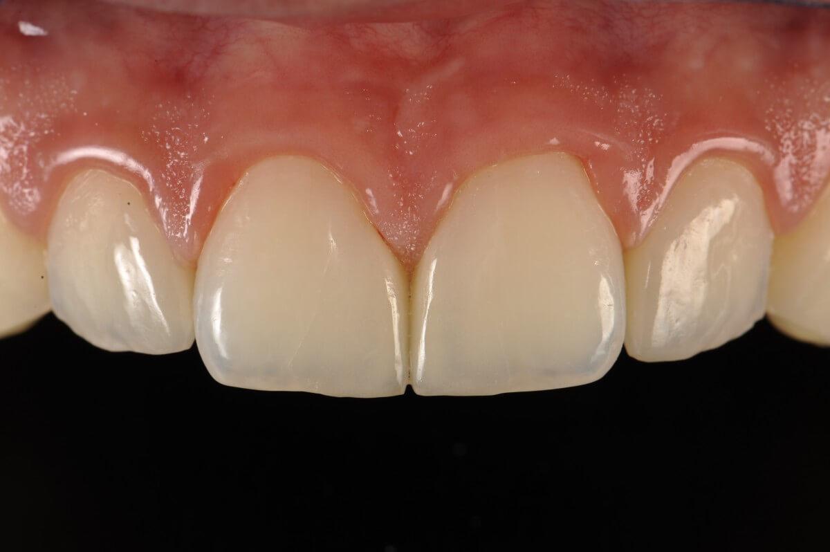 Estetica dentale | Studio Dentistico a Magnago, Milano, Magenta