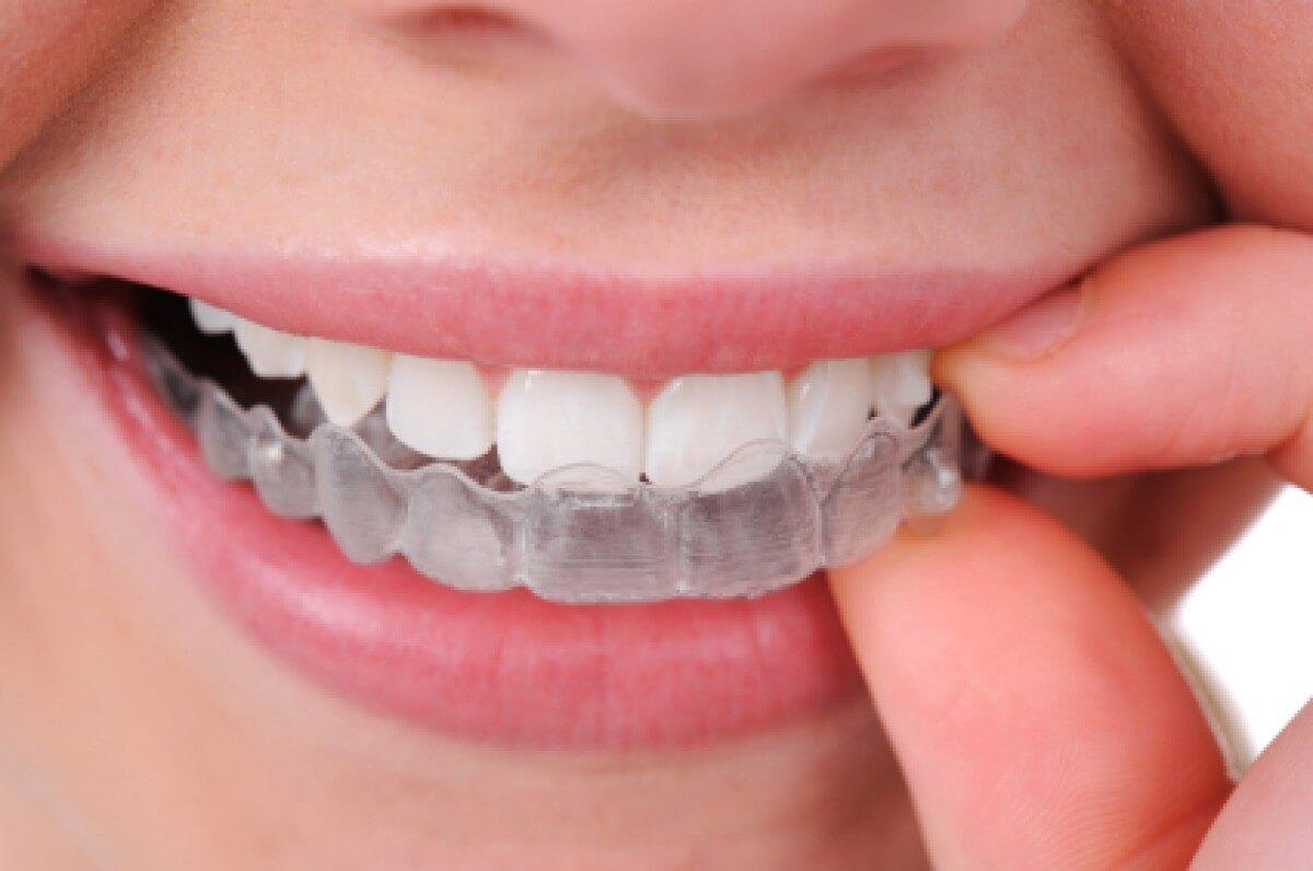 Estetica dentale | Studio Dentistico a Magenta, Magnago, Milano