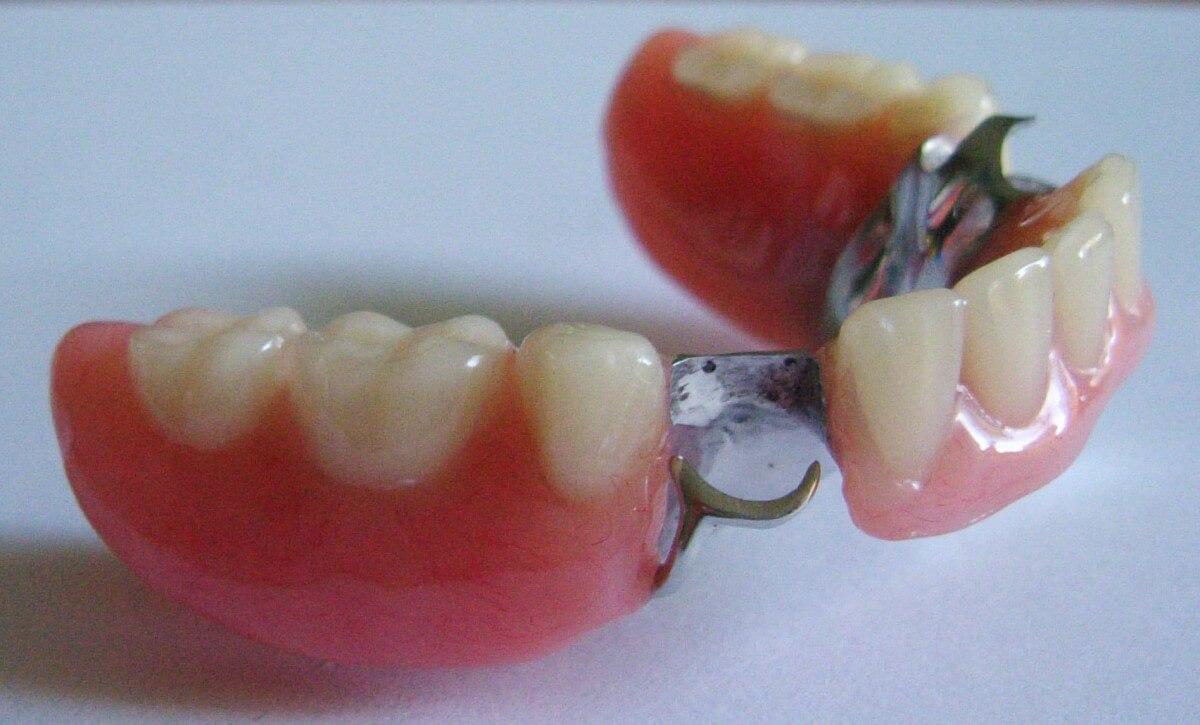 Protesi fissa e mobile 3 | Studio Dentistico a Milano, Magenta, Magnago
