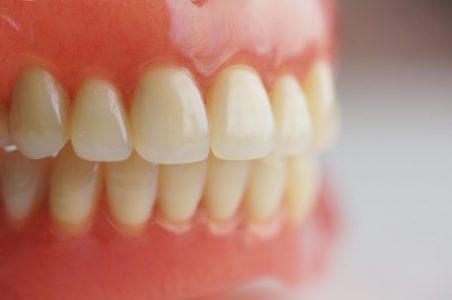 Protesi fissa e mobile 2 | Studio Dentistico a Milano, Magenta, Magnago