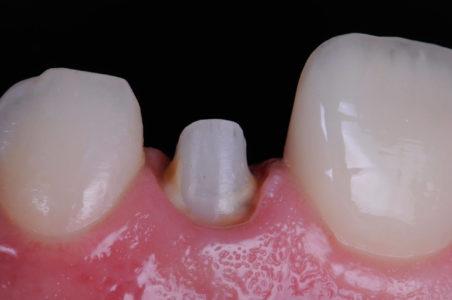 Protesi fissa e mobile 8 | Studio Dentistico a Magenta, Magnago, Milano
