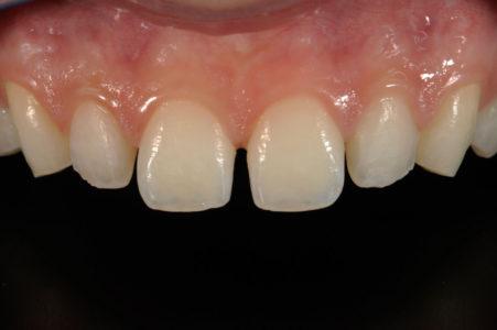Protesi fissa e mobile 6 | Studio Dentistico a Magenta, Magnago, Milano