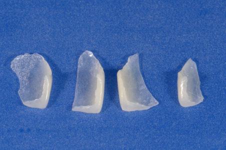 Protesi fissa e mobile 5 | Studio Dentistico a Magenta, Magnago, Milano