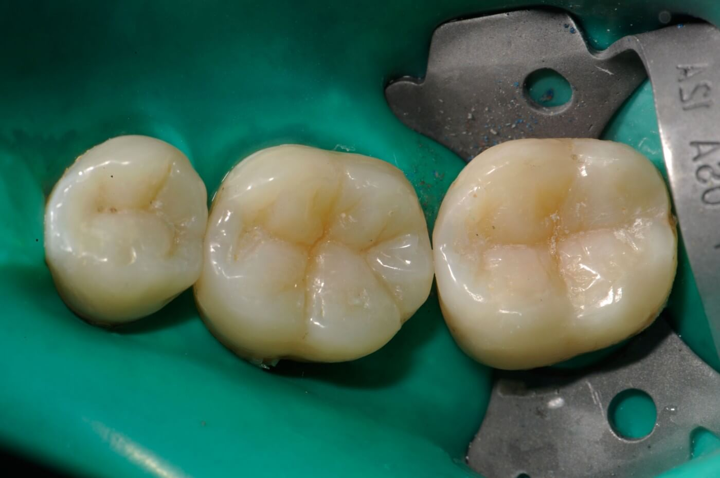 Studio Dentistico a Milano, Magenta, Magnago