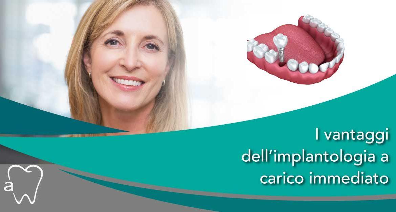 Ponte dentale - implantologia carico immedianto - Amadental - Dentista Milano