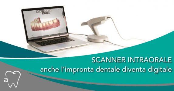 impronta dentale   Studio Dentistico Amadental