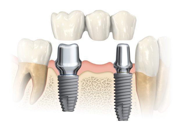 implantologia a carico immediato quanto costa 2