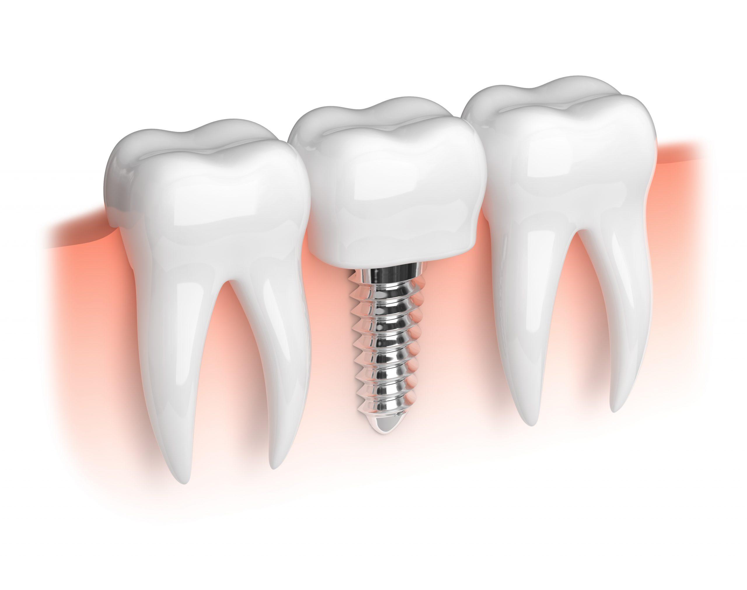 implantologia a carico immediato quanto costa 3